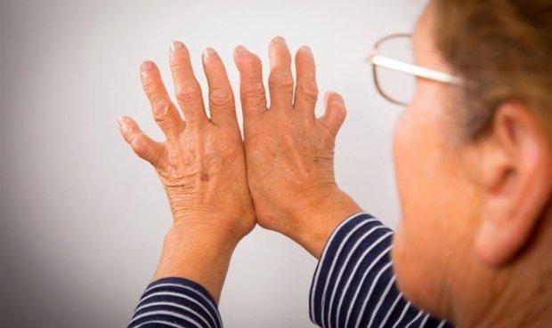 La combinación de estas terapias permitiría combatir la artritis. Foto: La República.